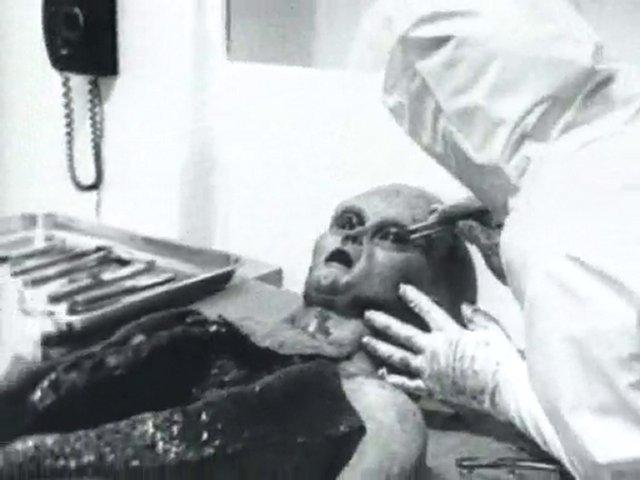 The infamous Alien Autopsy