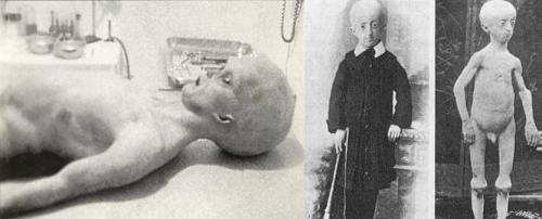 Aliens? Or progeria sufferers?