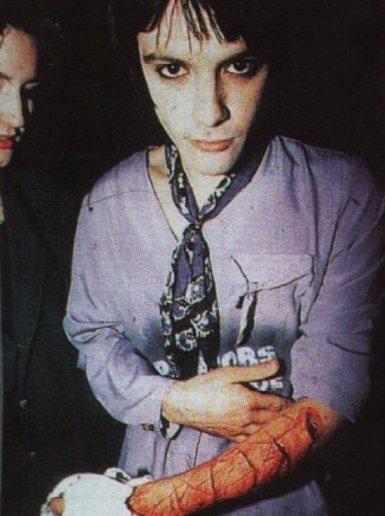Richey Edwards, with '4 REAL' carved into his arm